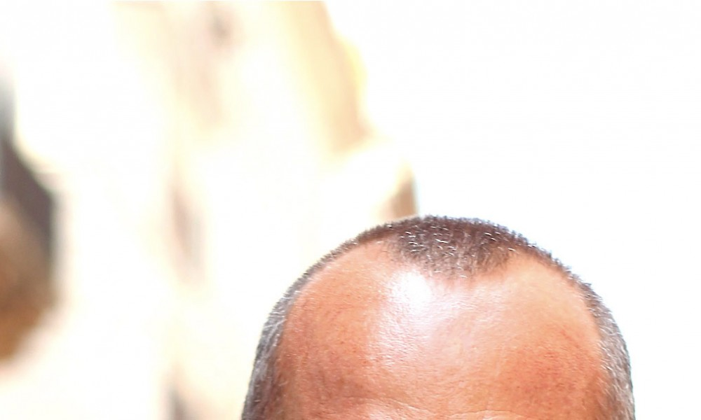 feat_bald